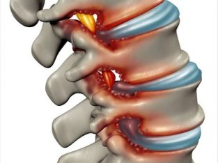 Remedy therapy for spinal stenosis